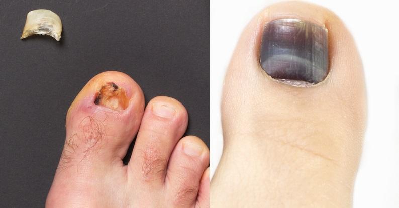 De ce cad unghiile de la picioare