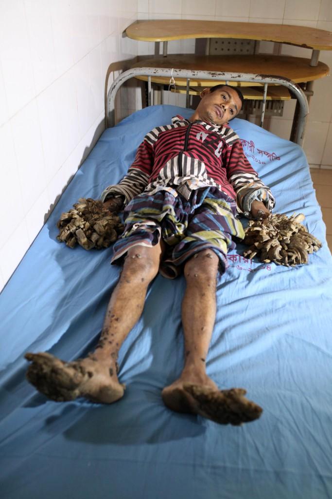Baummann Abul Bajandar wird endlich im Krankenhaus in Dhaka behandelt