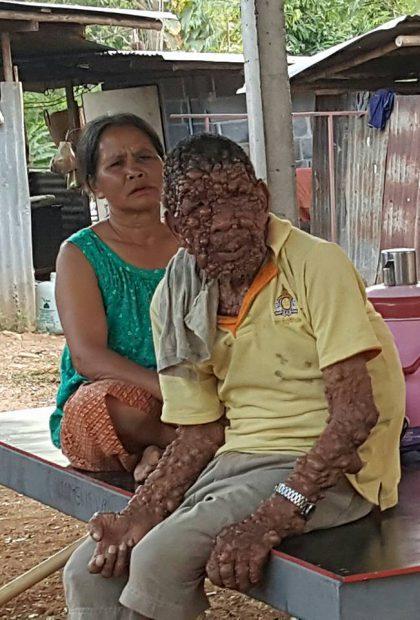 Sundjai din Thailanda are corpul acoperit cu tumori benigne