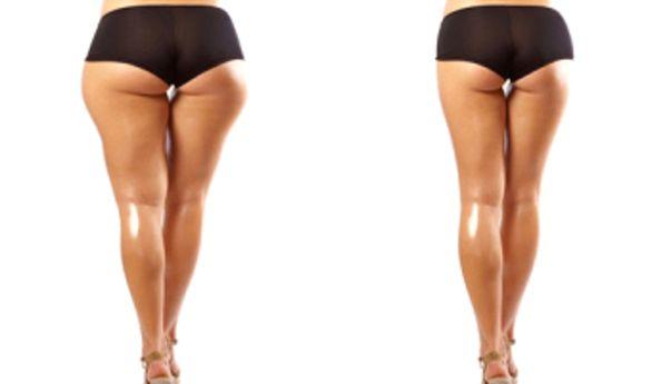 liposuctie genunchi
