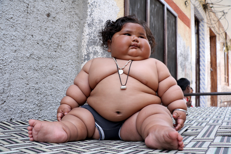 Despre tendinţa la obezitate a copiilor