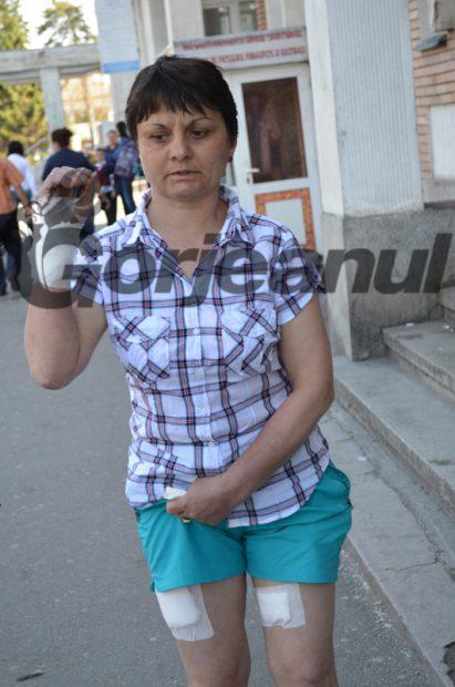 O femeie din Gorj a fost mușcată de câinii vecinilor. Animalele din rasa Rottweiler, care au atacat-o, sunt printre cei mai periculoși câini de luptă