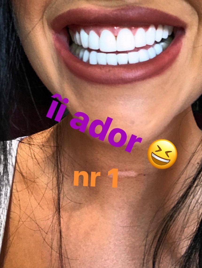 Daniela Crudu și-a albit din nou dinții. Cum arată dantura fostei asistente tv
