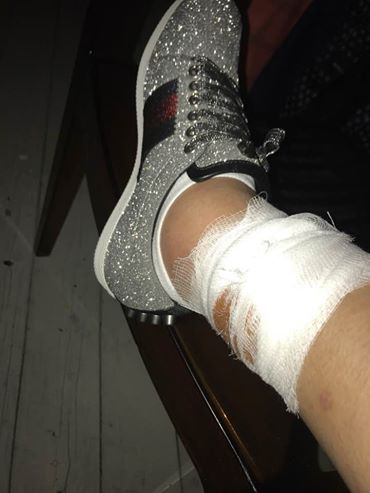 EXCLUSIV/ De la bal, la spital! Adrian Minune a ajuns la Camera de gardă după ce a fost mușcat de un picior
