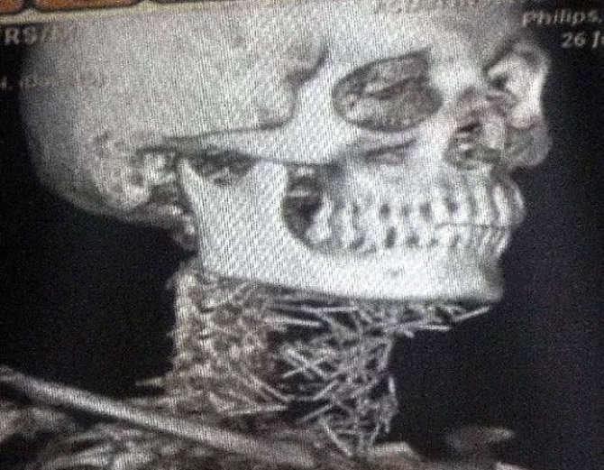 Cazul care i-a uimit pe medici: Un bărbat avea 150 de ace înfipte în corp, însă nu știe cum s-a întâmplat asta