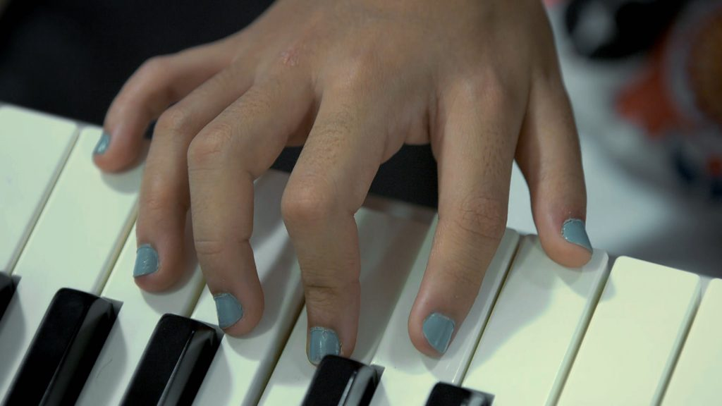 14 membri născuți cu 12 degete la mâini și la picioare