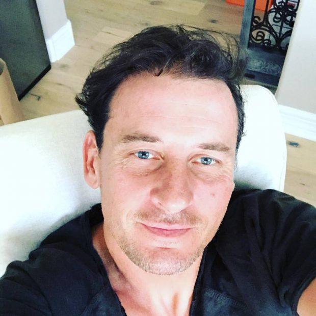 Andrei Pavel și-a făcut implant de păr
