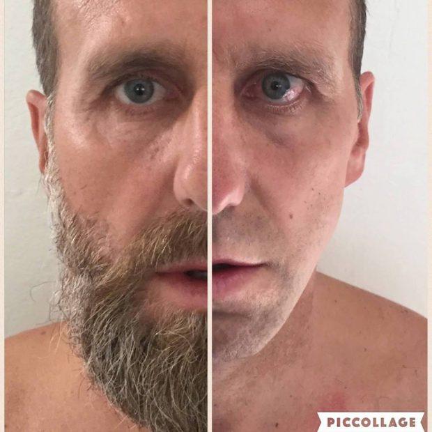 """Karel Poborsky are boala Lyme. Fostul fotbalist ceh s-a îmbolnăvit de la o căpușă care a """"locuit"""" în barba lui"""