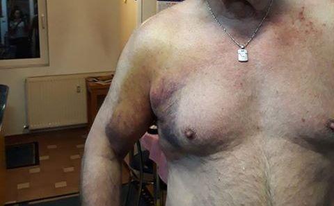 Medicul pensionar Liciniu Miculeanu își arată rănile de pe corp după ce a fost bătut de jandarmi