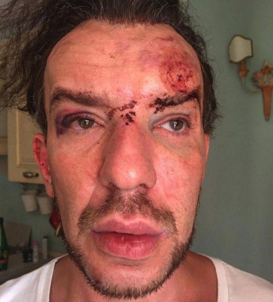 """Stephan Pelger nu și-a revenit complet după ce a fost bătut crunt la Cannes. """"Toată treaba a pornit de la filatorii din cluburi """""""