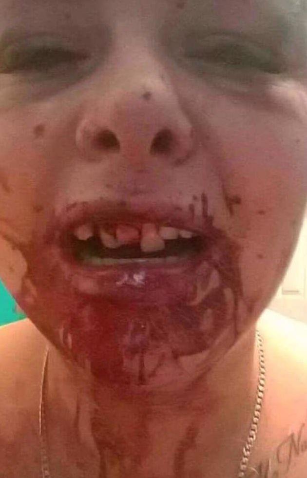 Un bărbat și-a bătut iubita și i-a spart trei dinți din cauză că a schimbat poza de pe Facebook și el nu mai apărea în ea