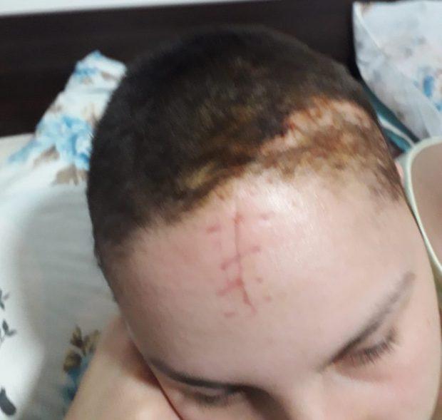 EXCLUSIV/ Adolescenta căzută acum o lună dintr-un autobuz în Ploiești nu a fost încă audiată de polițiști. Imagini cu fata la scurt timp după operație/FOTO
