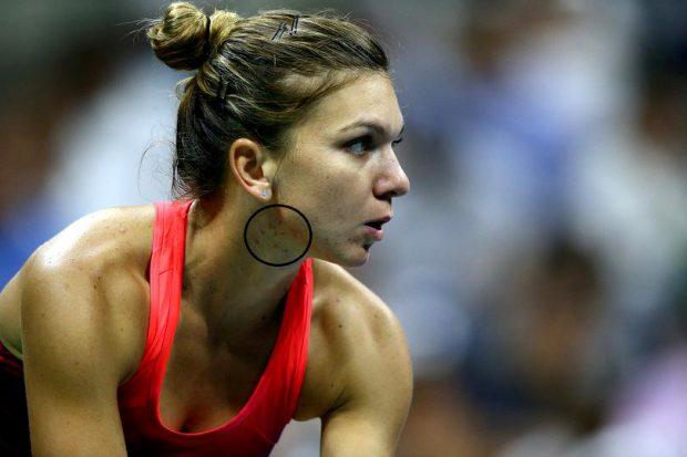 """Herpesul Simonei Halep """"apare de la stres"""". La US Open 2015, sportiva s-a umplut de bubițe"""