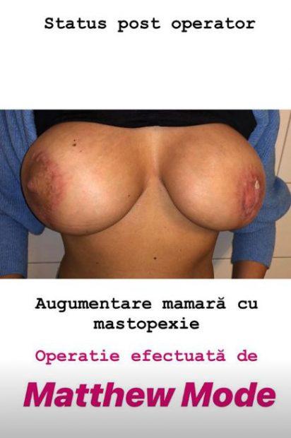 FOTO | Medic care tratează o victimă a escrocului Matteo Politi: Reparațiile durează cel puțin un an