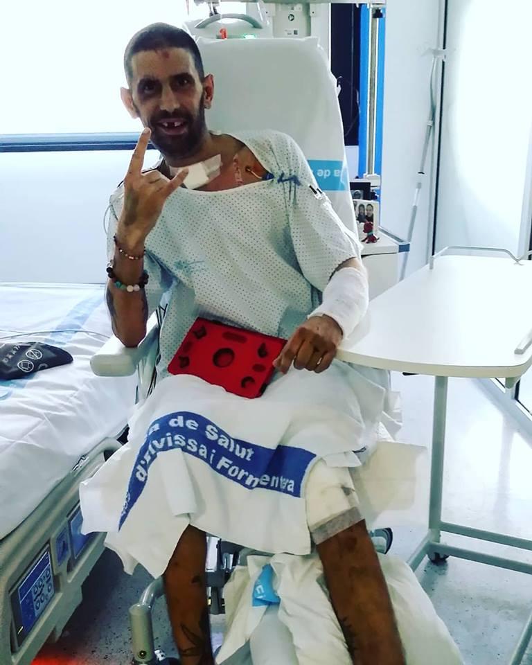 DJ Pagal și-a revenit după groaznicul accident de motocicletă! A fost în comă o săptămână și a fost operat de 5 ori!