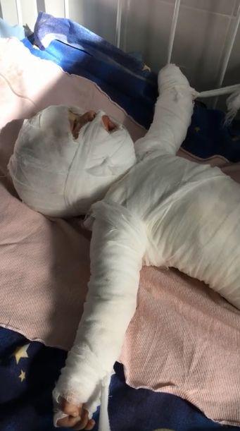 Un bebeluș a murit după ce a căzut în apă fierbinte