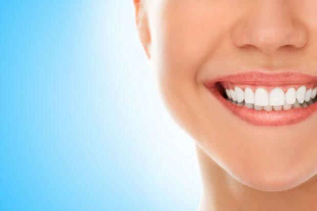 Fațete dentare - femeie cu fațete dentare si dinți perfect albi