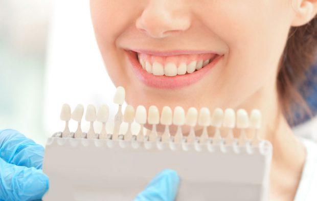 Fatete dentare - medic stomatolog care alege modelul de fatete dentare potrivit